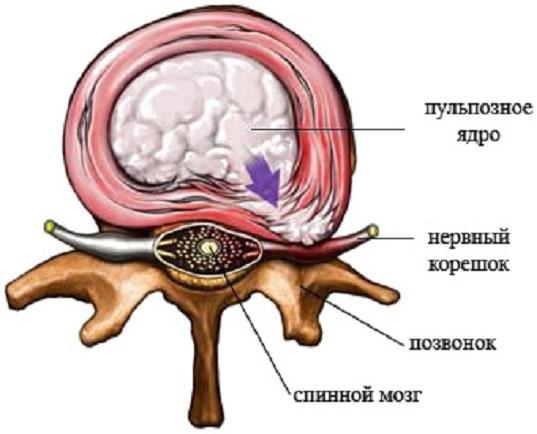 Нейродермит симптомы и лечение на руках у ребенка