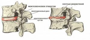 Осложнения при остеохондрозе