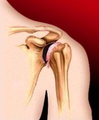 остеохондроза плеча