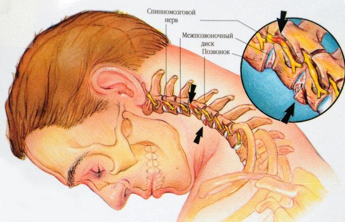 Медикаментозное лечение шейного остеохондроза - обзор лекарств