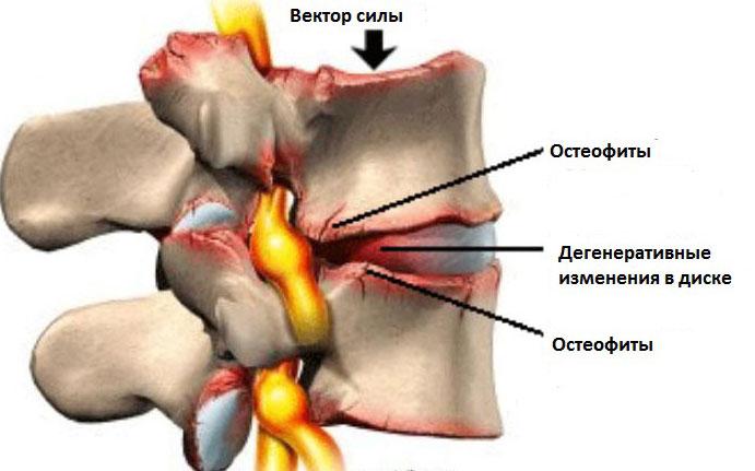 Когда болит зади бок левый спины