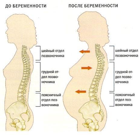 Болит правая сторона спины поясницы