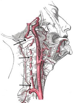 arterija