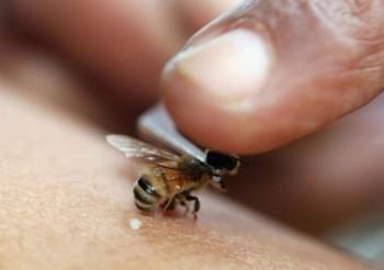 апитерапия с пчелой