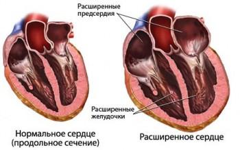 Болезнь кардиопатия