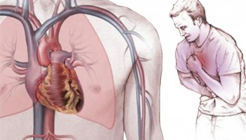 болезнь стенокардия