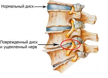 травмирование позвоночного диска