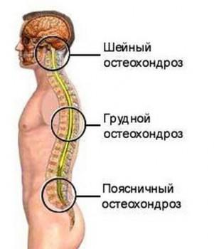 Три вида остеохондроза