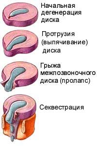 болезни позвоночника: протрузия, грыжа